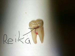 Reikä Hampaassa