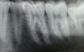 Hampaan Reikä
